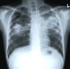 Chest X-Ray with TB