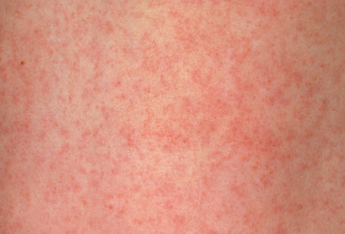 German_Measles-3