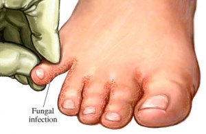 Herbal-remedies-for-athletes-foot