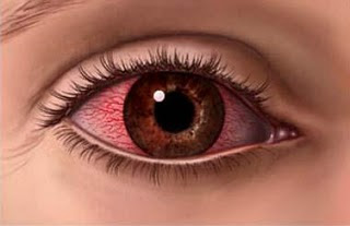 sore eye